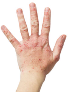 neurodermitis therapie symptome