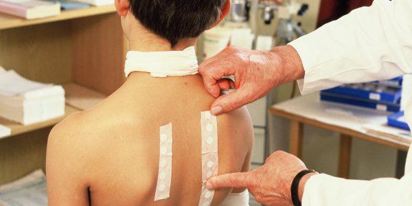 allergien behandeln alternativmedizin allergietest